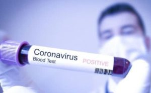 Нових випадків захворювання на COVID-19 в місті не зафіксовано